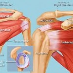 How To Avoid Surgery: Shoulder Impingement Warnings You Can't Ignore